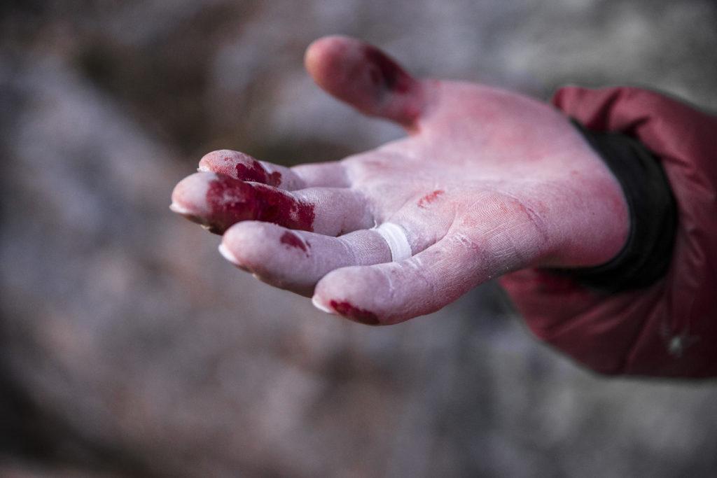 Alex_Rohr blutige Finger